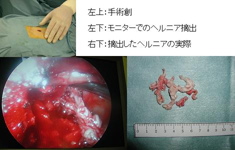 腰椎椎間板ヘルニアと腰部脊柱管狭窄症に対する内視鏡手術