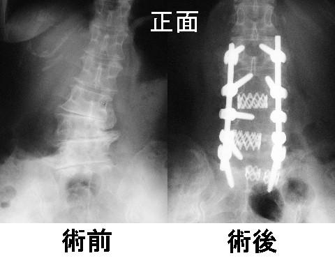 脊椎インストゥルメンテーション手術とは?