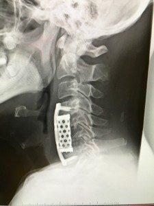 手術後エックス線(側面)