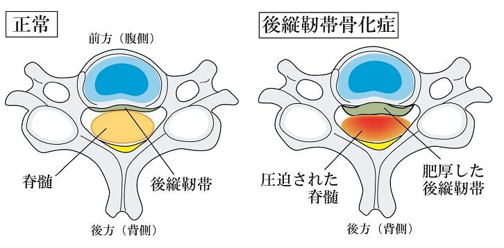 頚椎 椎間板 ヘルニア 完治